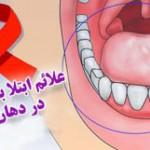 علائم ابتلا به ایدز در دهان