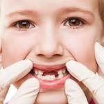 مشکل های رایج رویش دندان های دائمی در کودکان