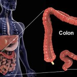 عواملی که منجر به سرطان روده می شود را بشناسید