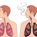 10 اتفاق خوشایند با ترک سیگار